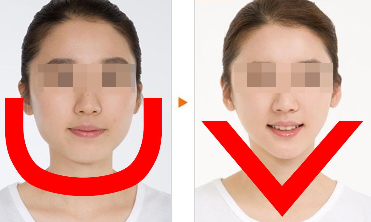 線民見證|最新特殊護膚技術| 取代埋線瘦面| 美容減肥