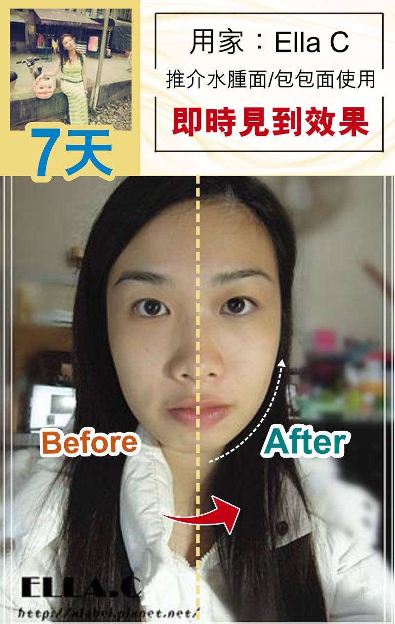 逆齡 / 點解明星可以咁逆齡 / 改善面部肌肉,蘋果肌下垂